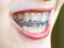 Pre-orthodontic trainer for bite close up. Pre-orthodontic trainer for bite correction close up in open mouth of teenager stock photography