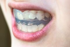 Pre-orthodontic trainer for correction of bite. Pre-orthodontic trainer for correction of teeth bite in mouth of teenager stock images