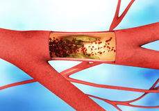Precipitating and narrowing of the blood vessels - arteriosclerosis Stock Image