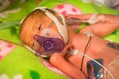 Preemie baby girl sucking on her pacifier. Preemie baby girl resting in the incubator with her pacifier royalty free stock image