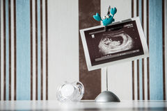 Pregnancy concept: ultrasound photo and pacifier Stock Images