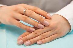 Pregos fêmeas com a falta dos nutrientes Opinião do Close-up Nenhum tratamento de mãos, nenhuma cara foto de stock royalty free