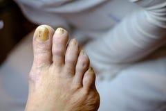 Pregos insalubres doentes no pé de um homem Foto de Stock