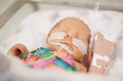 Premature Baby Stock Photo