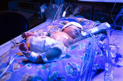 Premature Baby. Boy, born six & half weeks premature, in hospital Neo Natal Intensive Care Unit, undergoing phototherapy with ultra violet lighting to treat Stock Photo