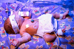 Premature Baby. Boy, born six & half weeks premature, in hospital Neo Natal Intensive Care Unit, undergoing phototherapy with ultra violet lighting to treat Stock Photography