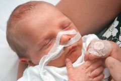 Premature baby Stock Images