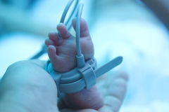 Premature baby foot under ultraviolet lamp Stock Image