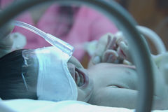 Premature baby with oxyzen under ultraviolet lamp Stock Images