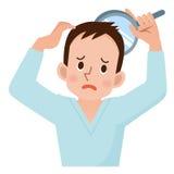 Preoccupazione degli uomini circa perdita di capelli Fotografia Stock Libera da Diritti
