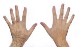 Preparação do laser do cabelo da mão Fotos de Stock