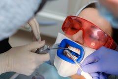 Preparando la cavità orale per l'imbiancatura con una lampada ultravioletta Primo piano Fotografie Stock Libere da Diritti