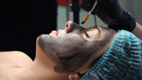 Carbon peeling. Preparation of face for cosmetic procedure. Cosmetologist applies carbon compound on skin with brush. Carbon peeling. Shooting close-ups stock footage
