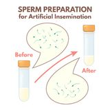 Preparation of sperm Stock Image