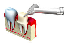 Preparation of the tooth crown for prosthetics. 3d image Stock Photo