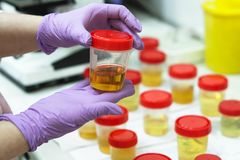 Preparation of urine samples in the laboratory in the hospital for the study. Special test strips for urine examination royalty free stock photography