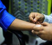 preparazione della prova di allergia della pelle da medico su una mano paziente facendo uso della lancetta per pungere la pelle immagini stock libere da diritti