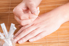 Acupuncture. Preparing to the acupuncture treatment. An acupuncture needle in woman's hand Stock Image