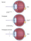 Presbyopia. An age related farsightedness, common eye condition, eps8 Stock Photo
