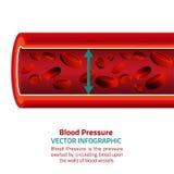Presión arterial Infographic Imagen de archivo libre de regalías