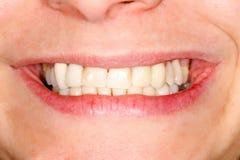 Pressande keramiska tänder Royaltyfri Foto