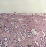 Presse-étoupe de prostate humain, microscopique Images libres de droits