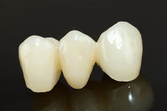 Pressed ceramic teeth Stock Photos