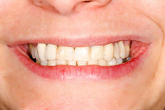 Pressed ceramic teeth Royalty Free Stock Photo