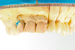 Pressed ceramic teeth Stock Image