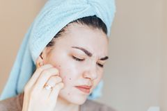 Pretty girl with towel on head squeezing pimple in towel on her head stock photo