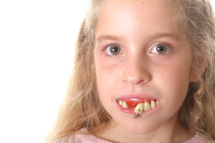 Pretty little girl with ugly teeth (copy space left) Royalty Free Stock Image