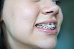 Pretty teenage girl wearing braces smiling cheerfully royalty free stock photography