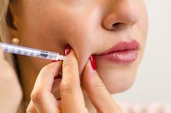 Pretty young woman beauty correction procedure closeup stock image