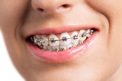 Prety girl smiling with braces. Prety young girl smiling with braces Royalty Free Stock Photos