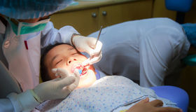 Preventation of pit and fissure caries Stock Photography