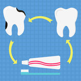 Preventing dental caries. Circular diagram with healthy tooth, decayed tooth, toothbrush and toothpaste. Symbolizing preventing dental caries through brushing Royalty Free Stock Photo
