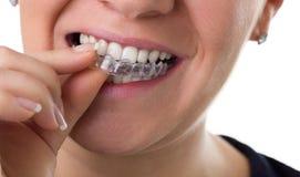 Preventive teeth braces. Woman puts preventive teeth braces Stock Photo