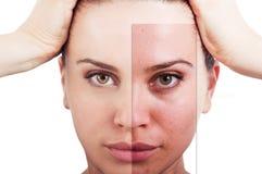 Prickfri ansikts- korrigering för kvinnastående före och efter royaltyfri bild
