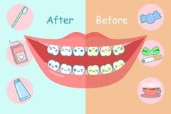 Prima e dopo i denti Immagini Stock Libere da Diritti
