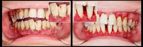Prima e dopo il trattamento Fotografia Stock Libera da Diritti