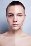 Prima e dopo l'operazione cosmetica Giovane ritratto grazioso della donna Fotografia Stock Libera da Diritti