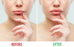 Prima e dopo le iniezioni del riempitore delle labbra Plastica di bellezza Belle labbra perfette con trucco naturale fotografie stock libere da diritti