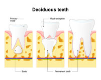 Primary tooth and permanent tooth. Process is root resorption. Royalty Free Stock Photo