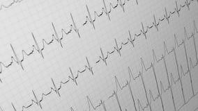 Primer cardiovascular del diagrama, pulso médico, metrajes