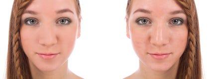 Primer de la cara del adolescente con y sin acné Imagen de archivo libre de regalías