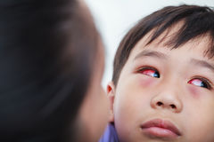 Primer de la conjuntivitis crónica con un iris rojo Foto de archivo libre de regalías