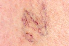 Primer de la pierna con las varices Foto de archivo