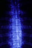 Primer de la radiografía fotografía de archivo libre de regalías