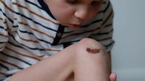 Primer de la rodilla del muchacho herido Muchacho que examina su pierna raspada herida Abrasiones en la pierna del muchacho almacen de metraje de vídeo