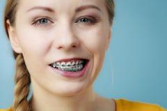 Primer de los dientes de la mujer con los apoyos, cara divertida Imagenes de archivo